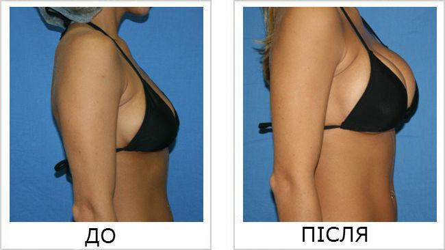 До і після застосування крему для збільшення грудей